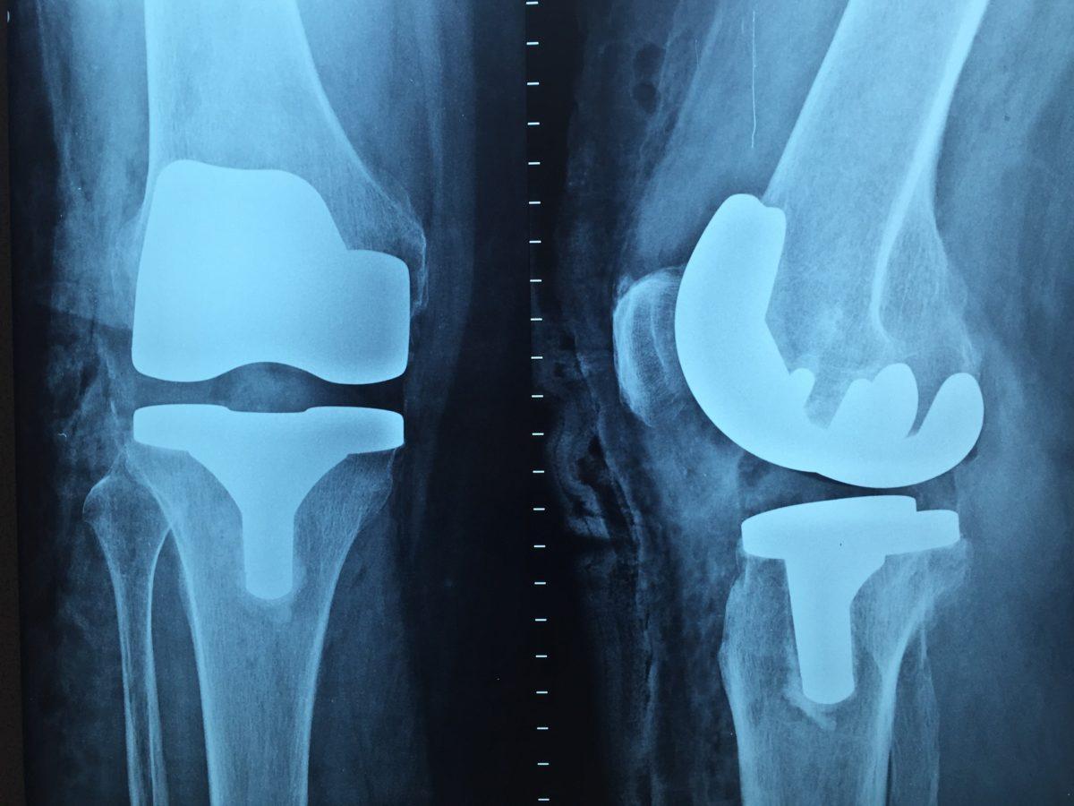 Artroskopia – ratunek dla kolan.